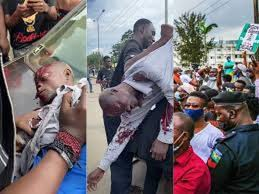 Outrage As Thugs Attack #ENDSARS Protesters In Lagos, Abuja